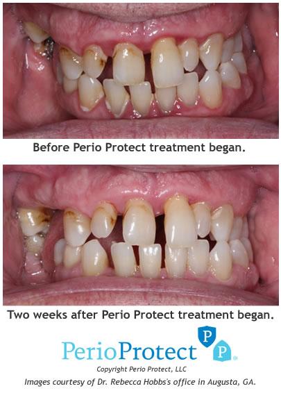 Damage Teeth
